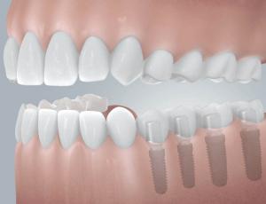 implantátumKérdések