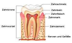 verursachen zahnkronen schmerzen