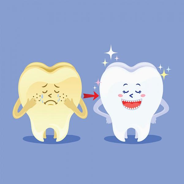 Unsichtbarer Zahnstein – haben Sie so etwas auch?