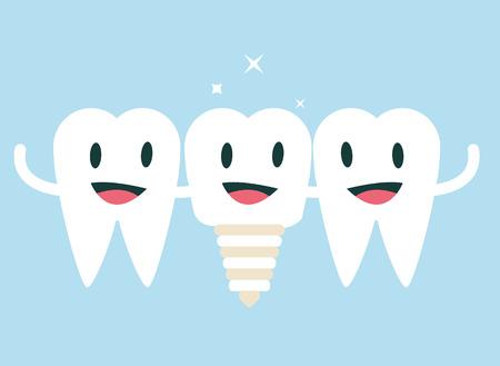 Alles, was Sie über einteilige Zahnimplantate wissen sollten