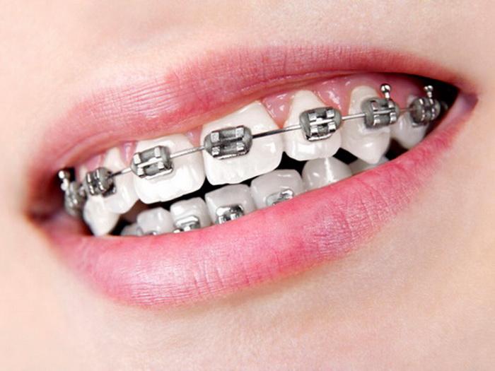 10 Argumente für die Zahnregulierung in Ungarn