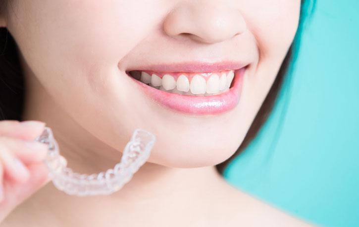 Ist die Zahnspangenbehandlung als Erwachsene wirklich möglich?
